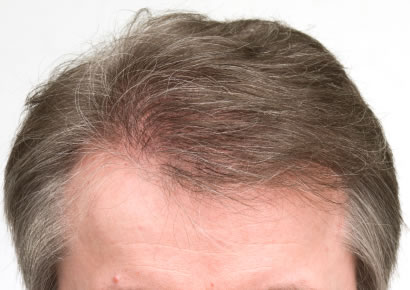 FUE Haartransplantation Methode
